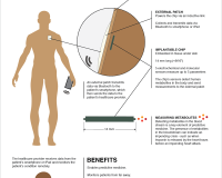 Digital Wireless Devices Transforming Medicine – Infographic